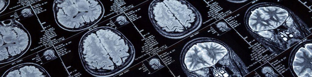 brain hyperthermia